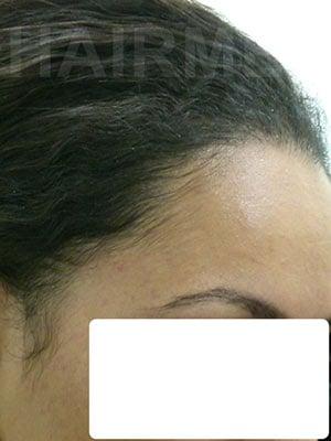 Result transplant hair