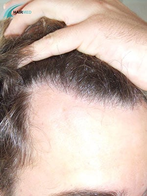 After 2000 transplant hair Dr Beyhan
