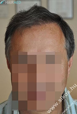 Transplant hair Dr Sikos