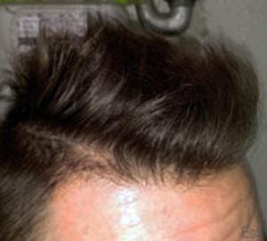 Result hairtransplant