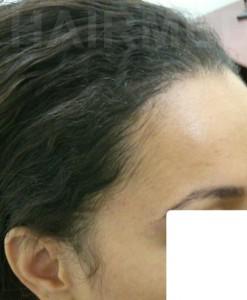 1600 FUT women hairline 9 month after 4/4