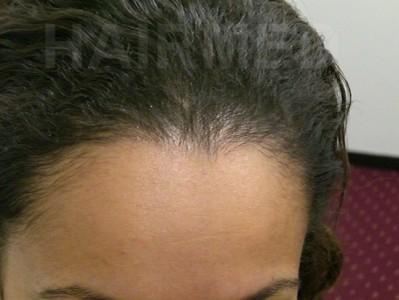 1600 FUT women hairline 9 month after 3/4