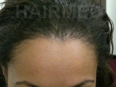 1600 FUT women hairline 9 month after 2/4