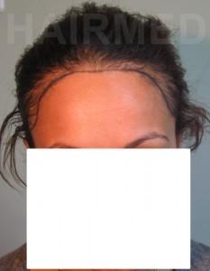 1600 FUT women hairline pre op 2/4