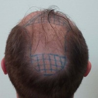 Back view before hair transplant iun Istanbul by FUT