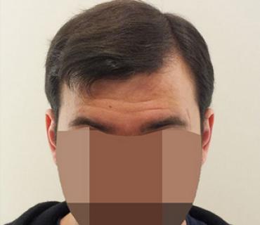 Result 3475 hair transplant FUE