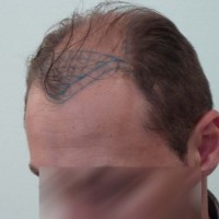 Hair transplant design in Turkey