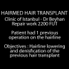 Video of hairline lowering