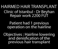 Video of hairline lowering
