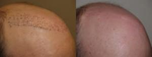 Repair hair transplant